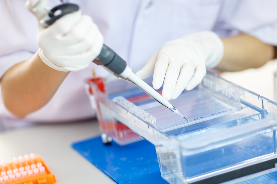 иммуноблоттинг в лаборатории